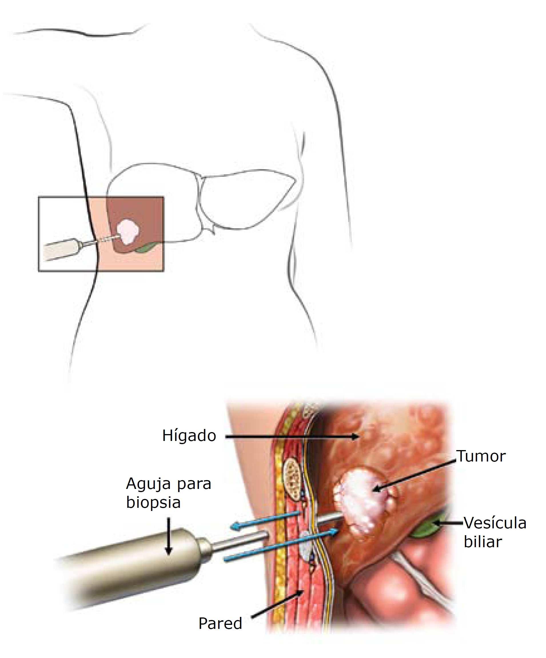 Biópsia Hepática